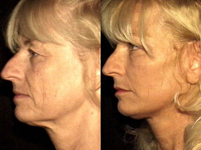 Facelift and graft-grifting 3