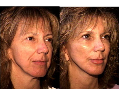 Facelift and graft-grifting 4