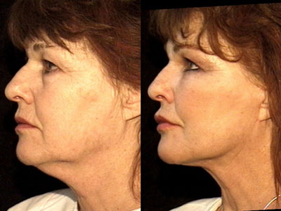Facelift and graft-grifting2