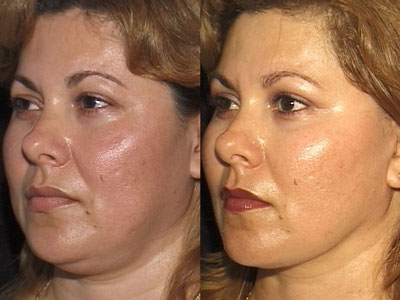 Fat-grafting and facelift
