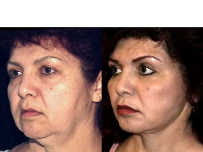 Toka zsrleszvs Facelift and fat-grafting